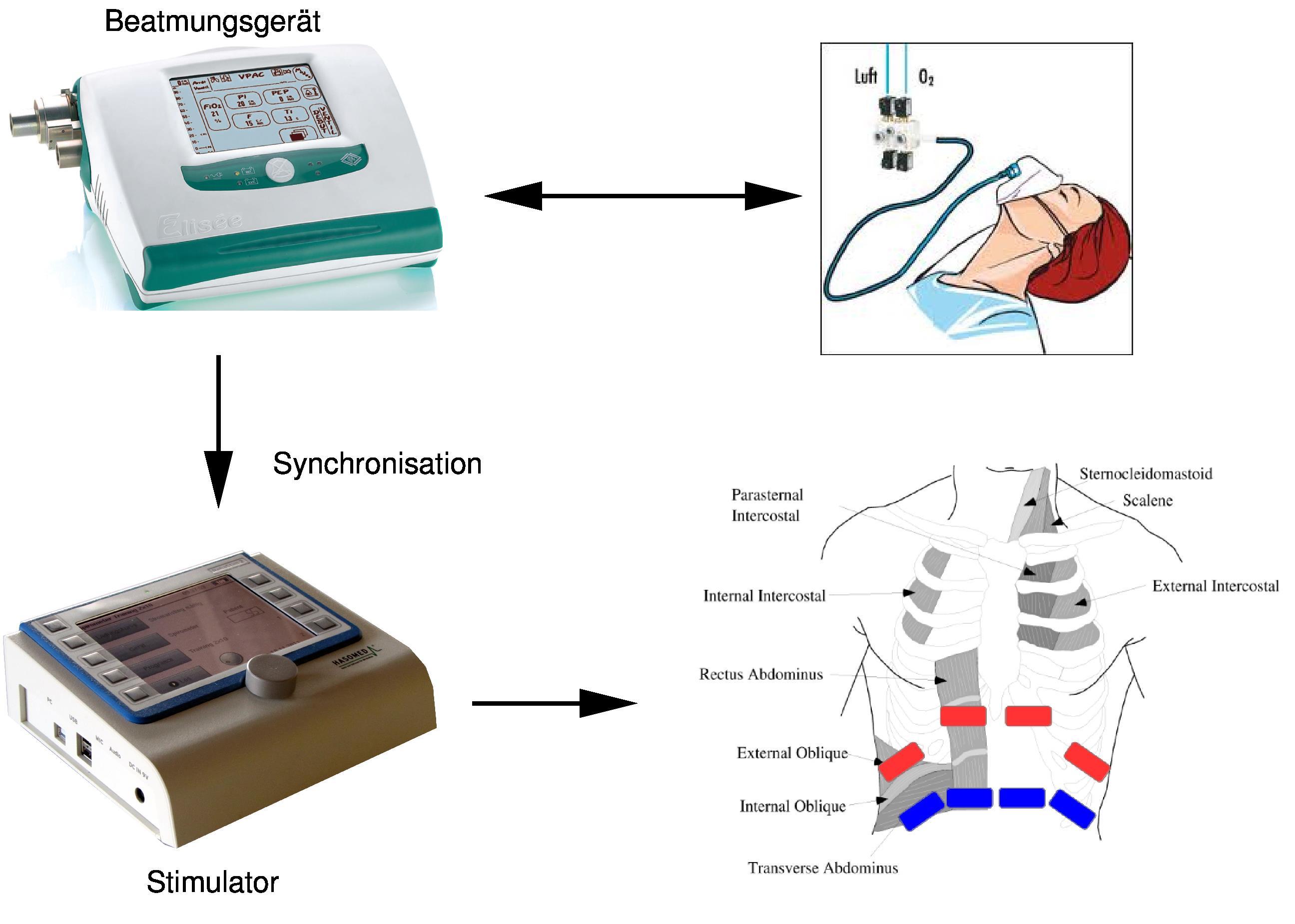 Aufbau Stimulationssystem