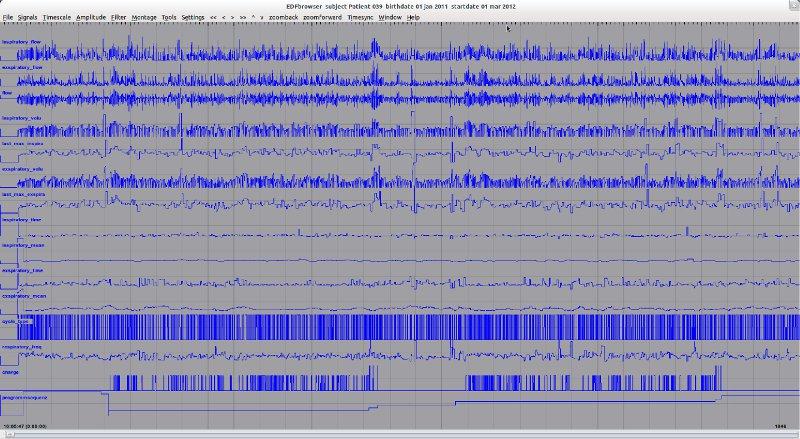 BDF-Datei enthält aufgezeichnete Atemparameter